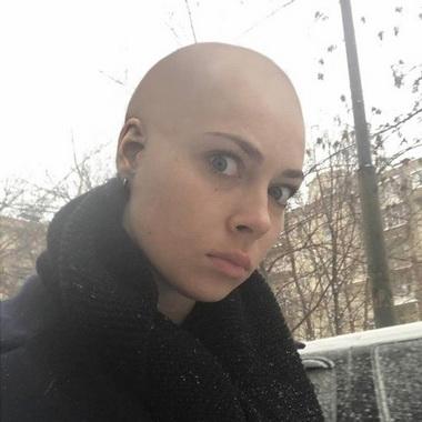 Настасья Самбурская лысая.